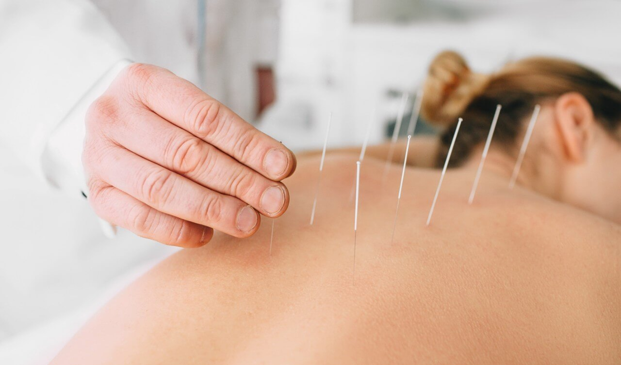 Acupuncture in Freehold , NJ