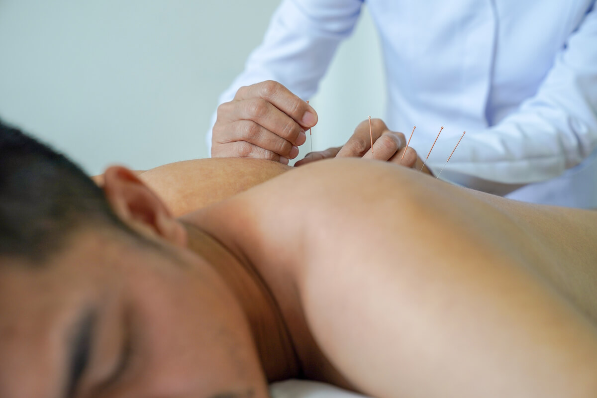 acupuncture for muscle tension